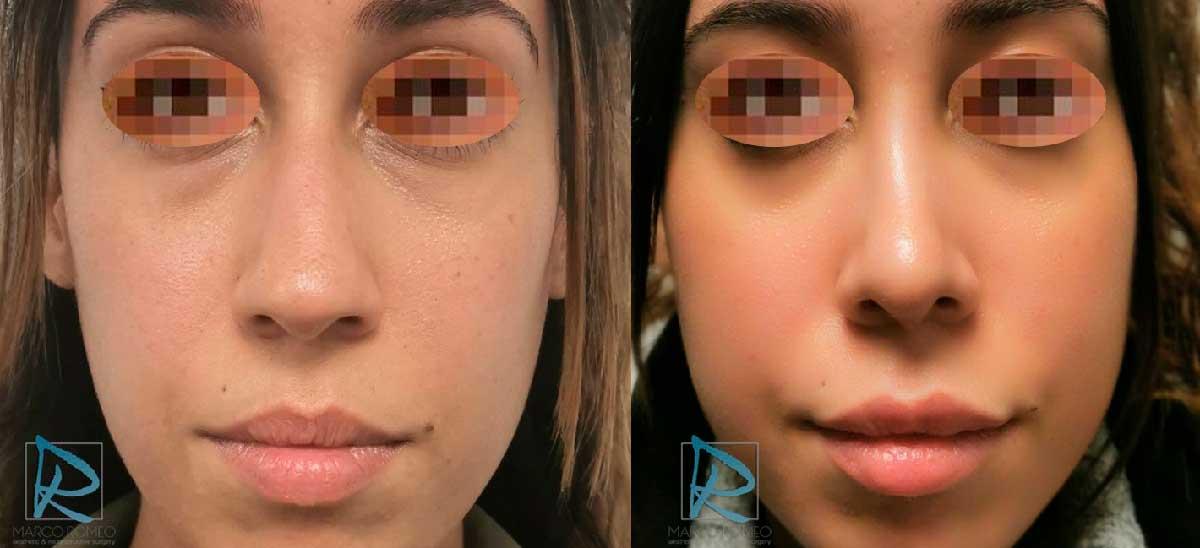 Rinoplastia - Frente - Antes y Después - Dr Marco Romeo