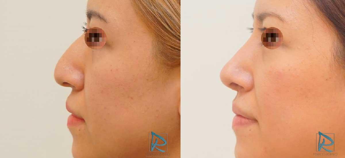 Rinoplastia - Lado izquierdo -Antes y Después - Dr Marco Romeo