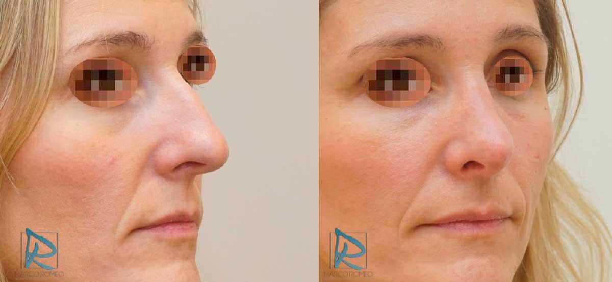 Rinoplastia Ultrasónica - Antes y Después - Ángulo derecho - Dr Marco Romeo
