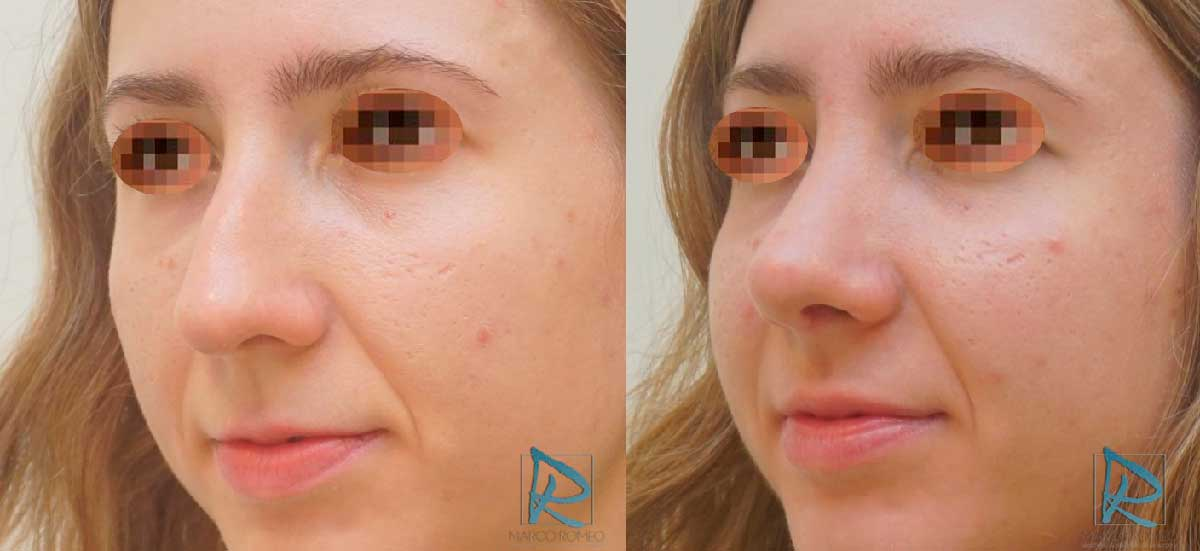 Rinoplastia Ultrasónica - Antes y Después - Ángulo izquierdo - Dr Marco Romeo