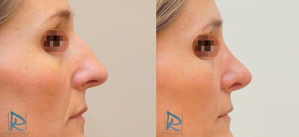 Rinoplastia Ultrasónica - Antes y Después - Lado Derecho - Dr Marco Romeo