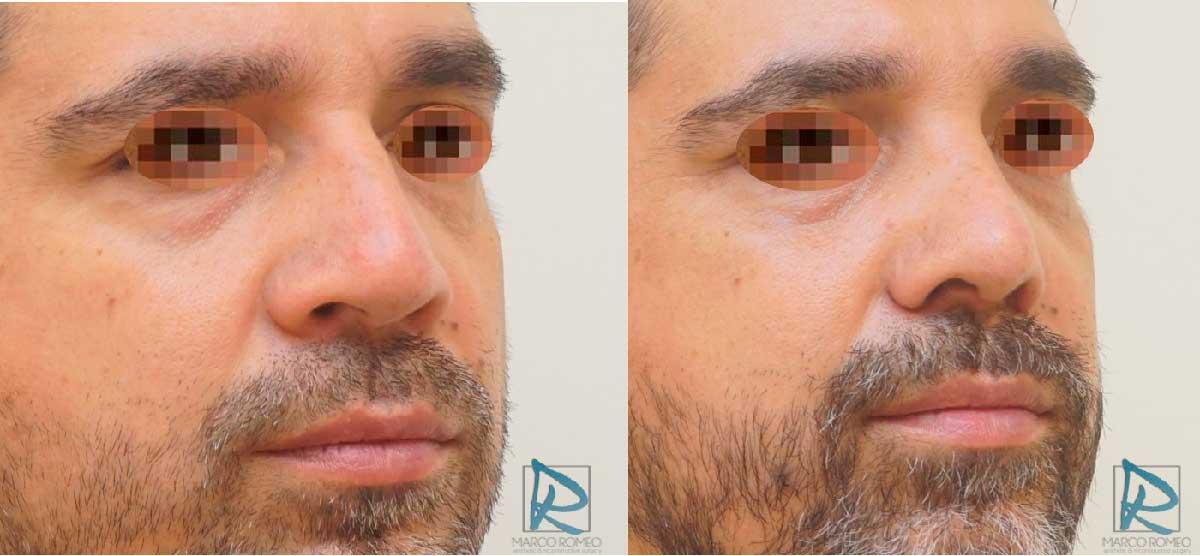 Rinoseptoplastia Ultrasónica - Antes y Después - Ángulo Derecho - Dr Marco Romeo