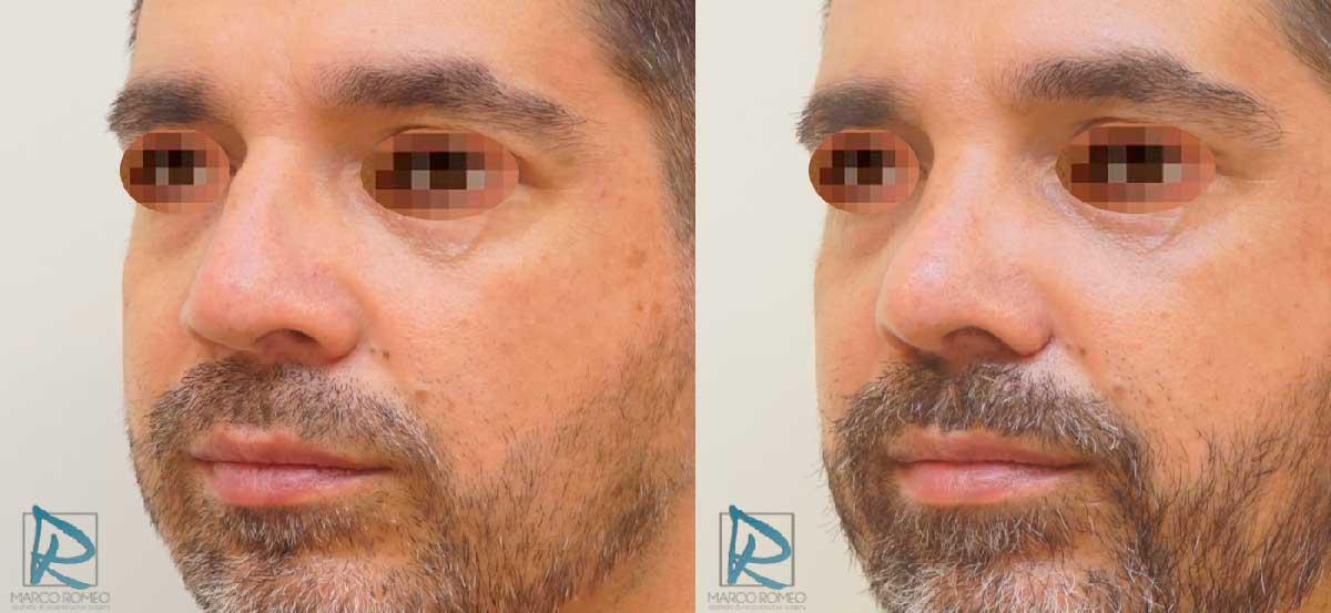 Rinoseptoplastia Ultrasónica - Antes y Después - Ángulo Izquierdo - Dr Marco Romeo